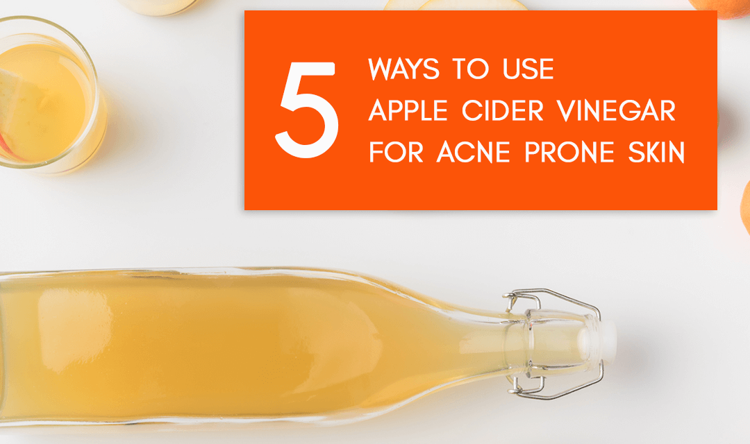 5 Recipes to Use Apple Cider Vinegar for Acne