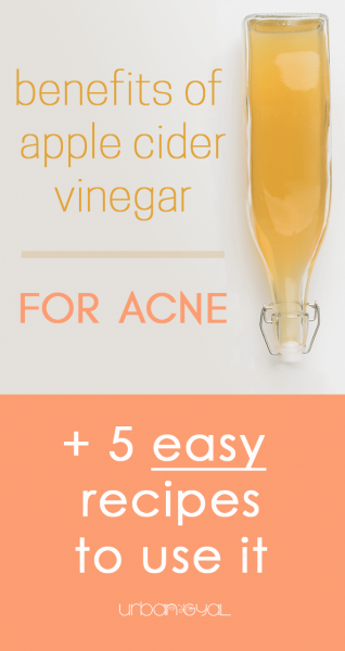 Benefits of Apple Cider Vinegar for Acne