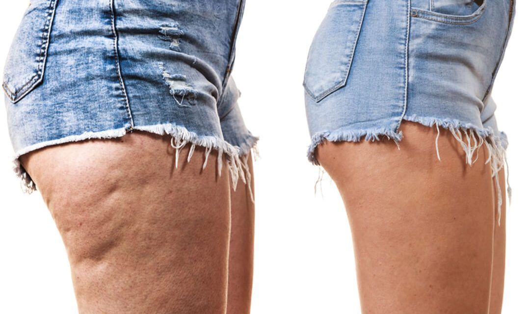 The Best Cellulite Treatments and Best Ways To Get Rid Of Cellulitis Fast