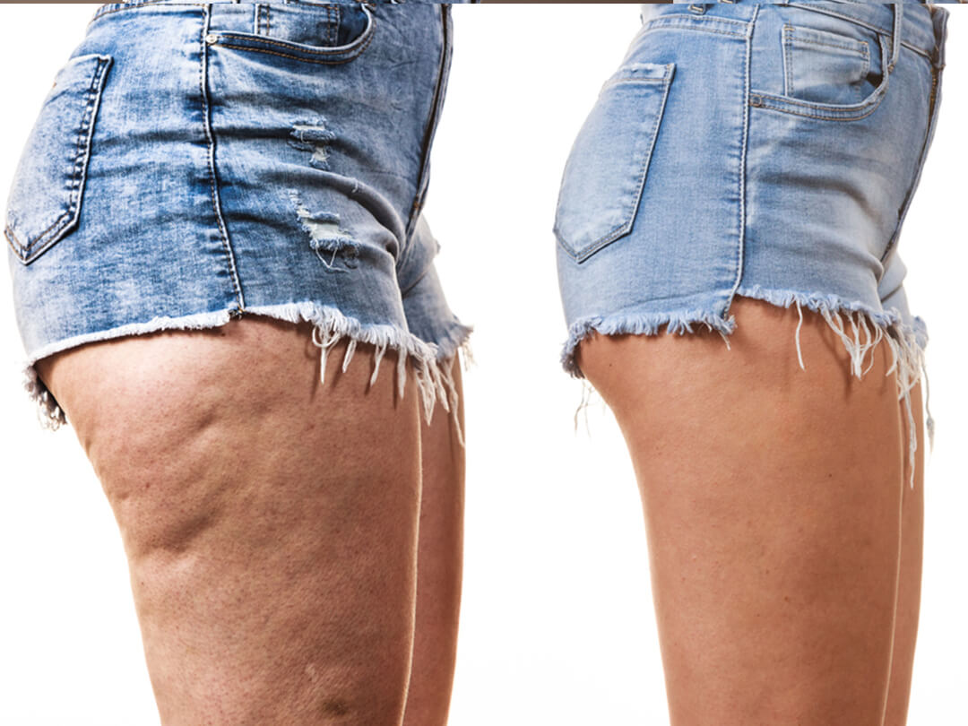 The Best Cellulite Treatments And Best Ways To Get Rid Of