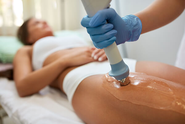 Acoustic Wave Cellulite Therapy