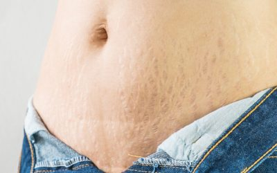 9 methods of Stretch Mark Removal – Natural, Medical, Surgical Treatments