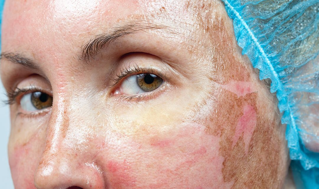 A Few Things Consider Before Doing A TCA Chemical Peel For Clearer Skin