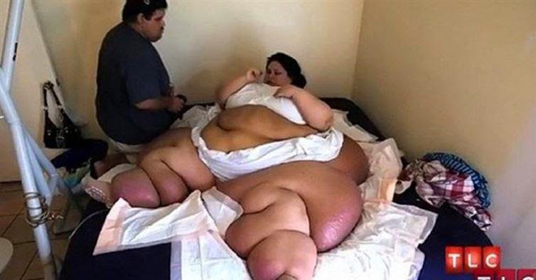 Woman Weighing Over 1000 Pounds Made The Commitment To Lose Weight And You Wont Believe What She Looks Like Now